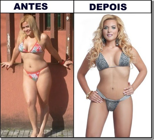 Lipoescultura - Antes e Depois