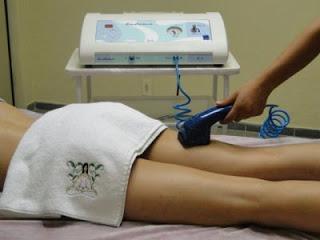 Endermologia - Tratamento Estético