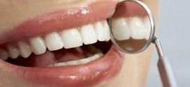 evitar escurecer dente