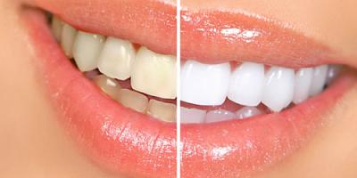 Clareamento dental caseiro: veja como fazer (Foto: Divulgação)