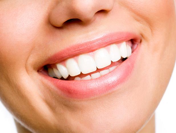 Clareamento Dental Caseiro Veja Como Fazer