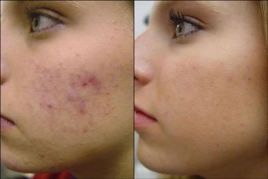 Antes e depois de usar Acnase (Foto: Divulgação)