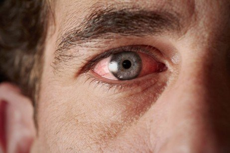 Olhos vermelhos como ocorrem Como evitar (Foto: Divulgação)