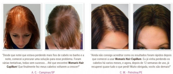 womans hair capillum antes depois