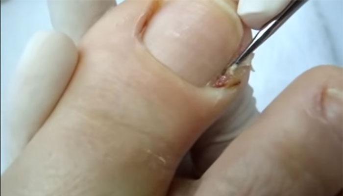 Como é possível retirar manchas escuras em uma cara