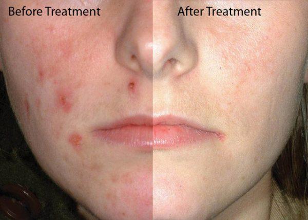 Antibiótico Acne Tetraciclina