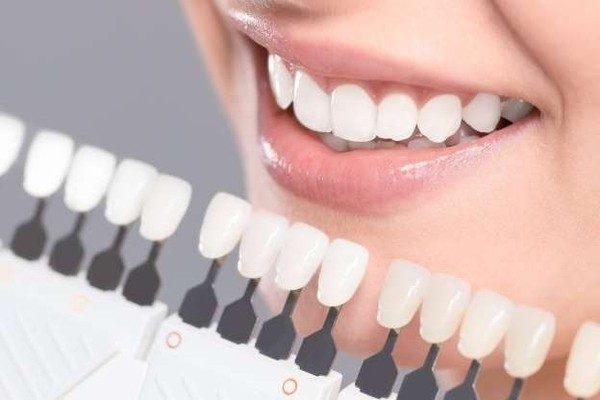 Clareamento Dental Precos Clique Aqui