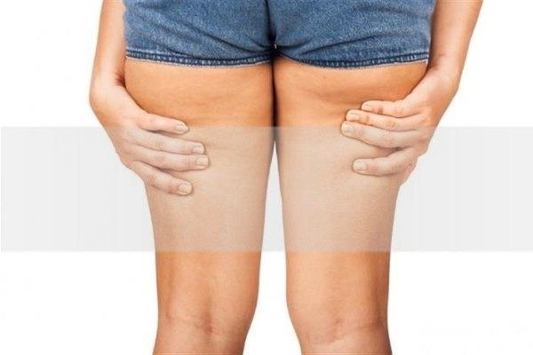 Como emagrecer as pernas