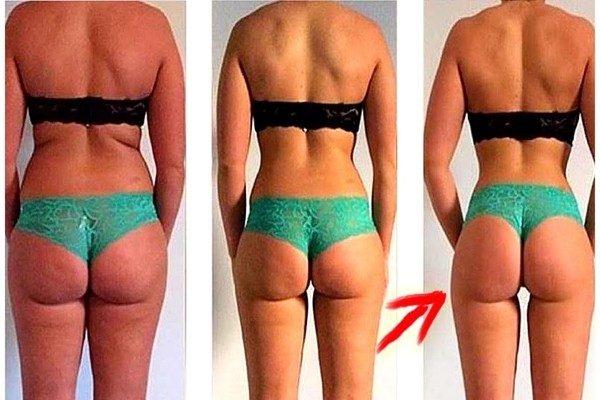 eliminar gordura localizada